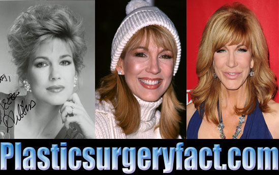 Leeza Gibbons Cosmetic Surgery Before and After