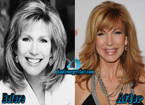 Leeza Gibbons Facelift Surgery
