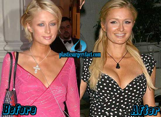 Paris Hilton Boob Job Before and After