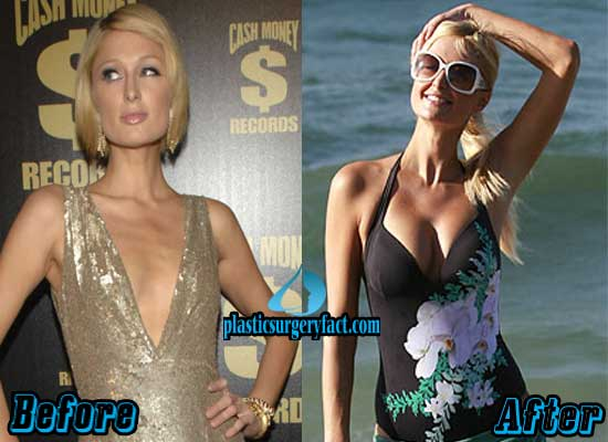 Paris Hilton Breast Implants Before and After