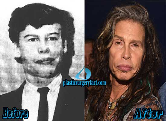 Steven Tyler Before and After Plastic Surgery