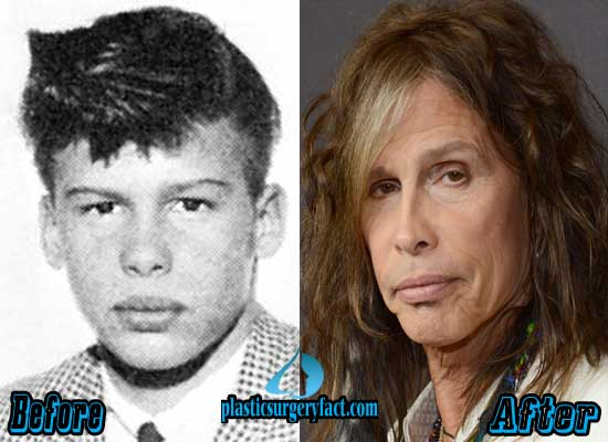 Steven Tyler Nose Job Before and After