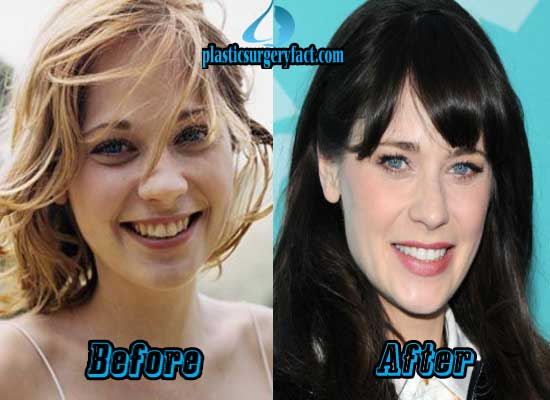 Zooey Deschanel Nose Job Before and After