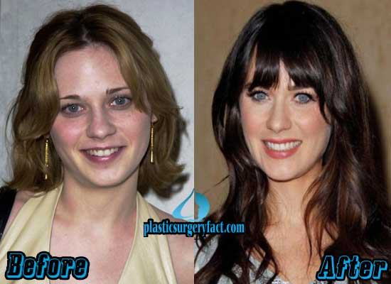Zooey Deschanel Rhinoplasty Surgery Before and After