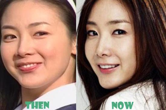 Choi Ji Woo Eyelid Surgery