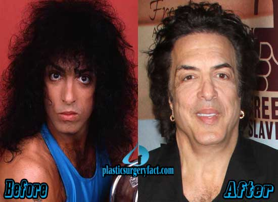 Paul Stanley Before and After Plastic Surgery