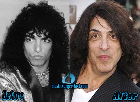 Paul Stanley Before and After
