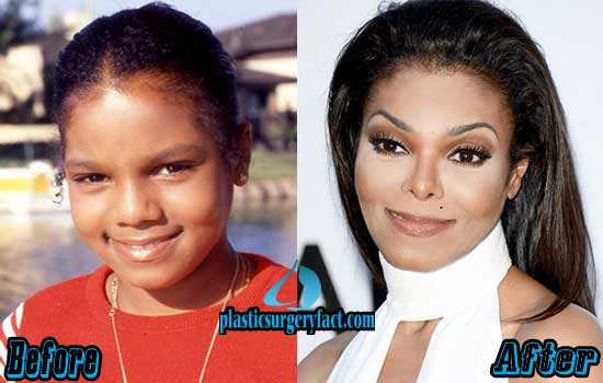 Janet Jackson Nose Job Before and After