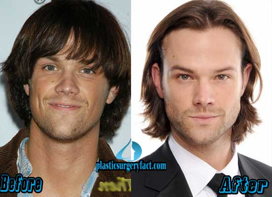 Jared Padalecki Nose Job Before and After