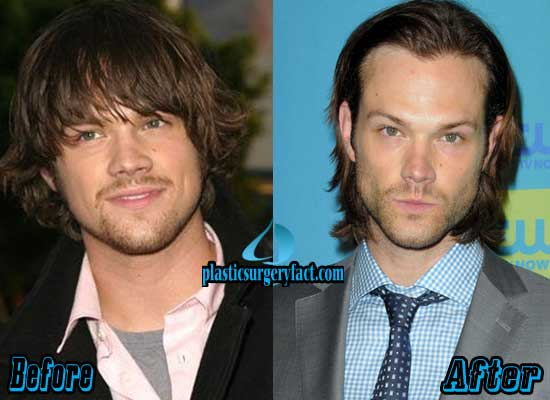 Jared Padalecki Rhinoplasty Surgery