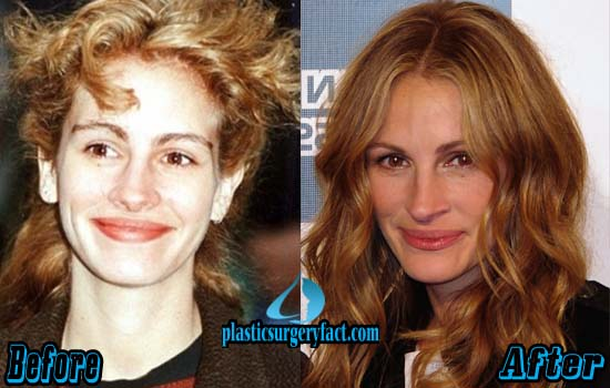 Julia Roberts Nose Job Before and After