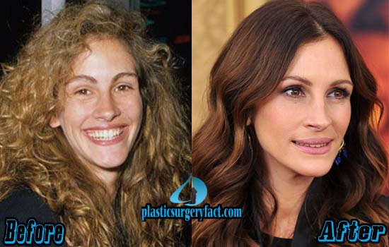 Julia Roberts Rhinoplasty Surgery
