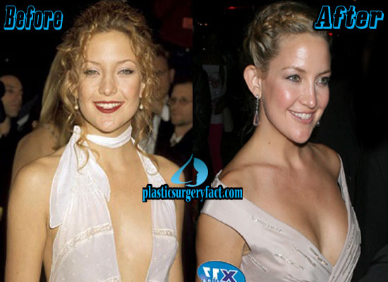 Kate Hudson Boob Job Before and After