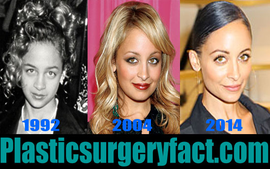 Nicole Richie Nose Job Before and After