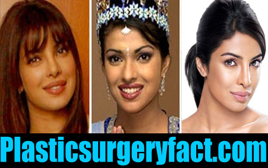 Priyanka Chopra Nose Job Before and After