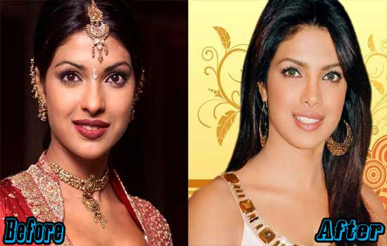 Priyanka Chopra Rhinoplasty Surgery