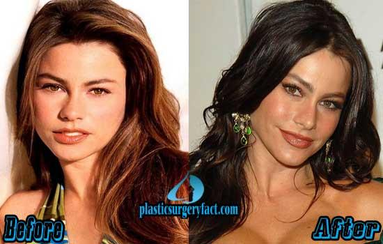 Sofia Vergara Nose Job Before and After
