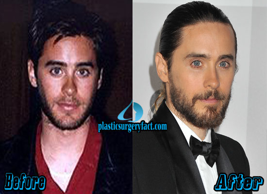 Jared Leto Nose Job Before and After
