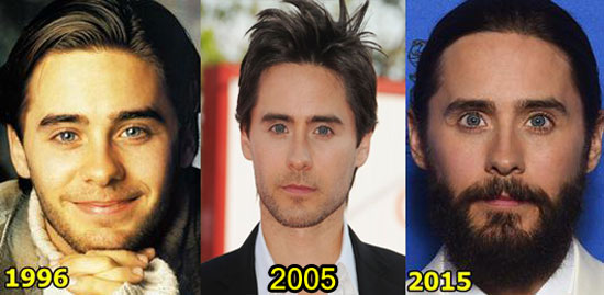 Jared Leto Plastic Surgery Before and After Botox