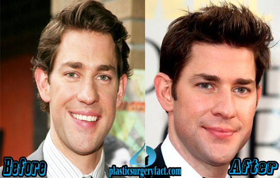 John Krasinski Nose Job Before and After