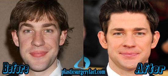 John Krasinski Rhinoplasty Surgery