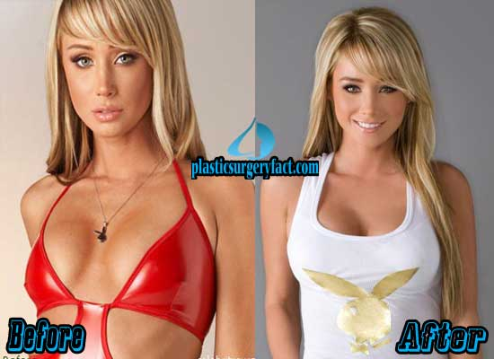 Sara Jean Underwood Breast Augmentation