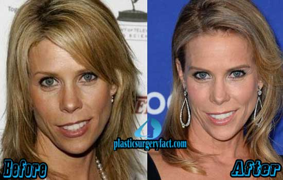 Cheryl Hines Plastic Surgery Pictures