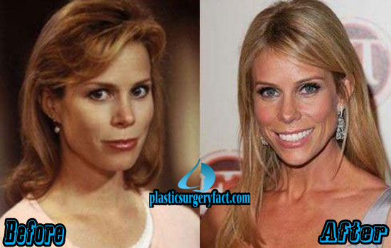 Cheryl Hines Cosmetic Surgery