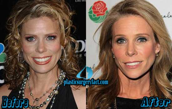 Cheryl Hines Plastic Surgery Face