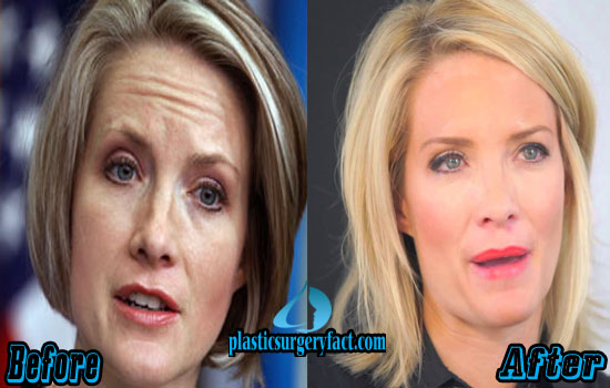 Dana Perino Before And After Plastic Surgery