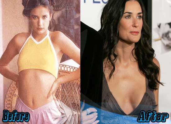Demi Moore Boob Job Before and After