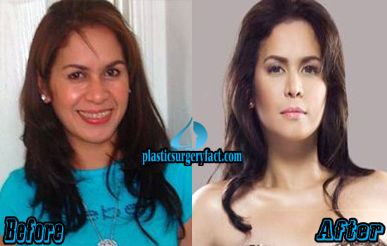 Jinkee Pacquiao Plastic Surgery Before