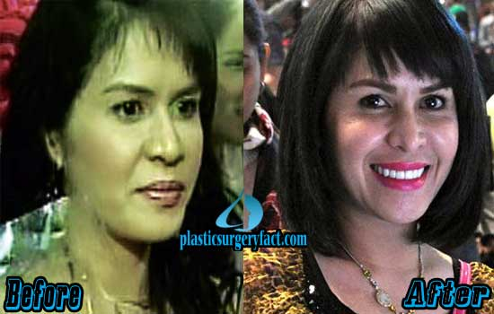 Jinkee Pacquiao Before and After Plastic Surgery