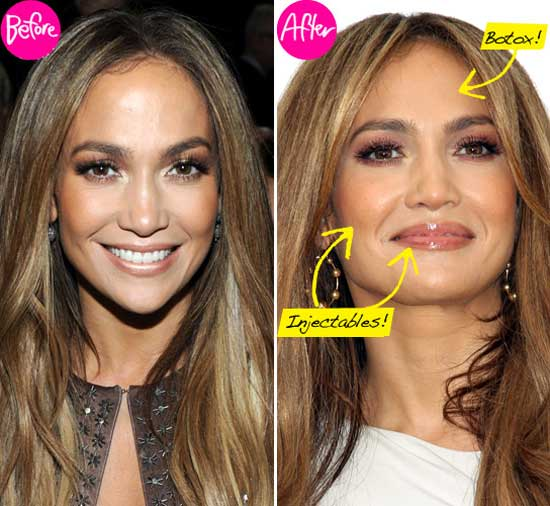 Jennifer Lopez Plastic Surgery Before After Pictures