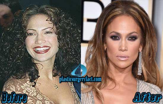 Jennifer Lopez Plastic Surgery