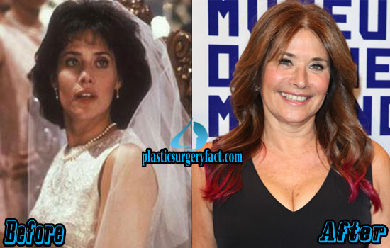 Lorraine Bracco Before and After Photos