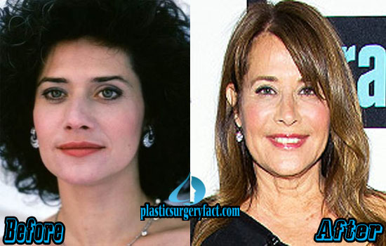 Lorraine Bracco Plastic Surgery Pictures