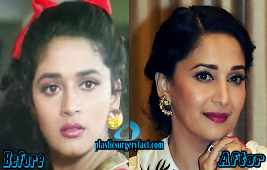 Madhuri Dixit Rhinoplasty Surgery Before and After