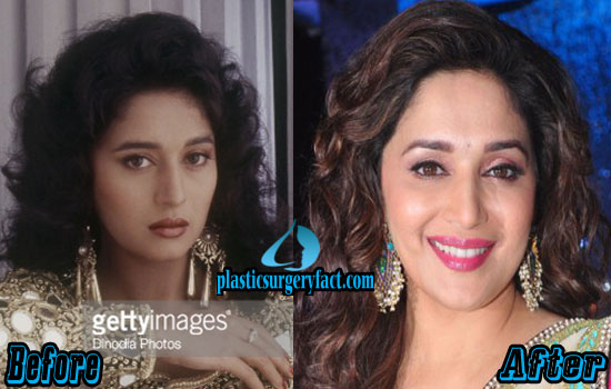 Madhuri Dixit Plastic Surgery Photos