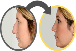 Best Revision Rhinoplasty Expert NYC