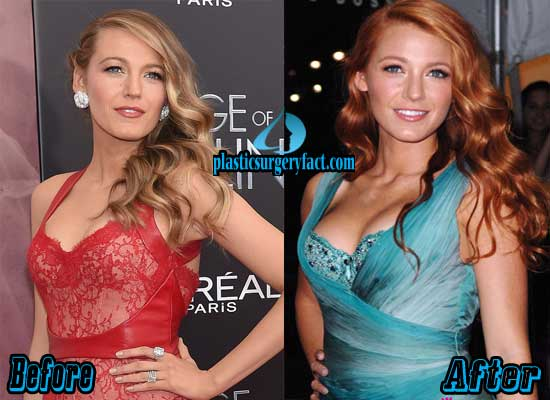 Blake Lively Boob Job Before and After