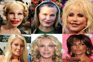 Botched Plastic Surgery Photos