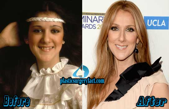 Celine Dion Nose Job Before and After