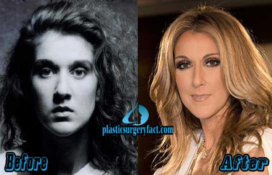 Celine Dion Plastic Surgery Images