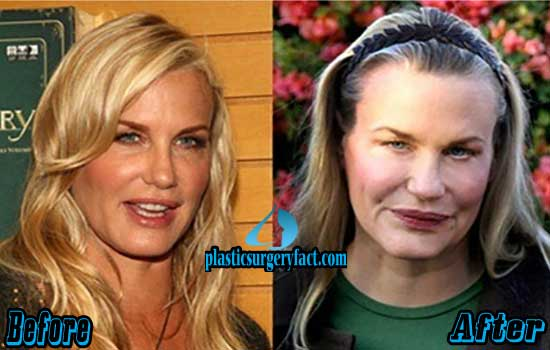Daryl Hannah Plastic Surgery Photos