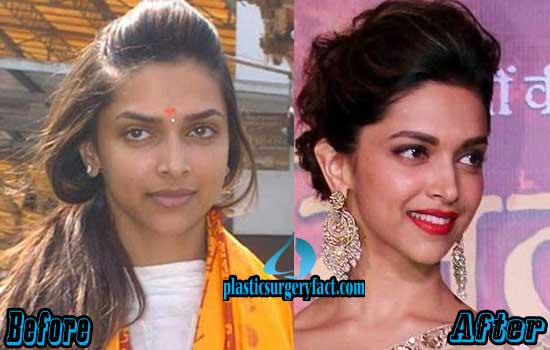 Deepika Padukone Nose Job Before and After
