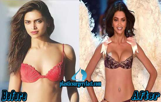 Deepika Padukone Breast Augmentation