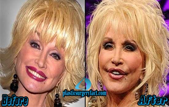 Dolly-Parton-Plastic-Surgery-Photos.jpg