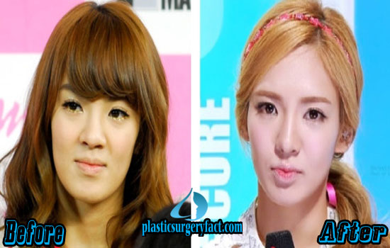 Hyoyeon Kpop Plastic Surgery Before and After