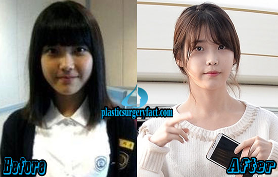 IU Kpop Plastic Surgery Before and After